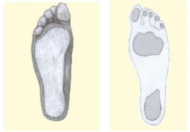 Esame-impronta-plantare_160695