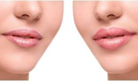 Filler labbra sassuolo