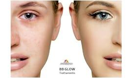 1 trattamento bb glow