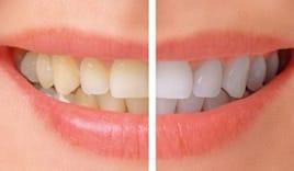 Igiene dentale 29,90€