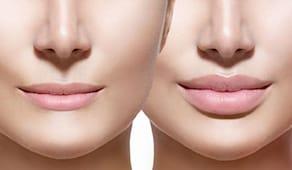 Rimpolpamento labbra
