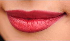 Filler labbra no aghi