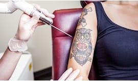 Tatuaggio carpi