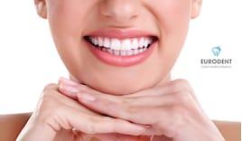 Pulizia denti -63%