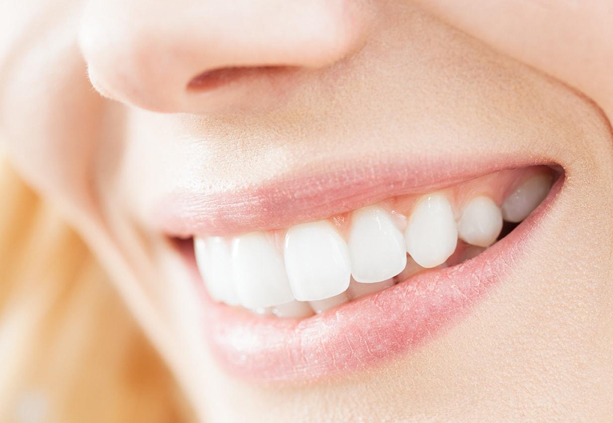 Pulizia dei denti -72%!