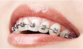 Sconto apparecchio denti