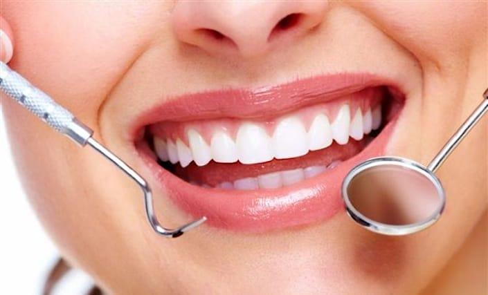 Pulizia-denti-a-29-euro_98104