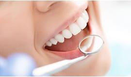 Visita denti completa