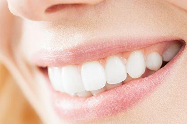 Visita con pulizia denti
