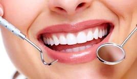 Pulizia denti sasdelli