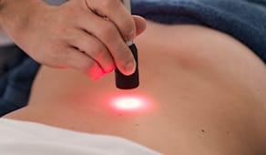 10 laser terapia