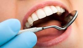 Denti bianchi a solarolo