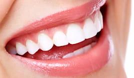 Denti sani da montanari