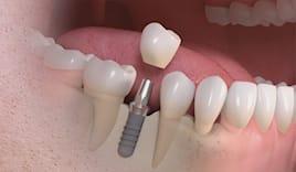 Dente ceramica o zirconio