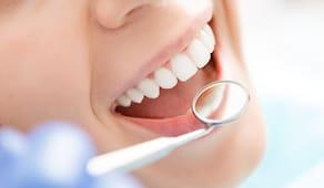 Pulizia denti arpa