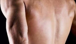 Depilazione uomo schiena