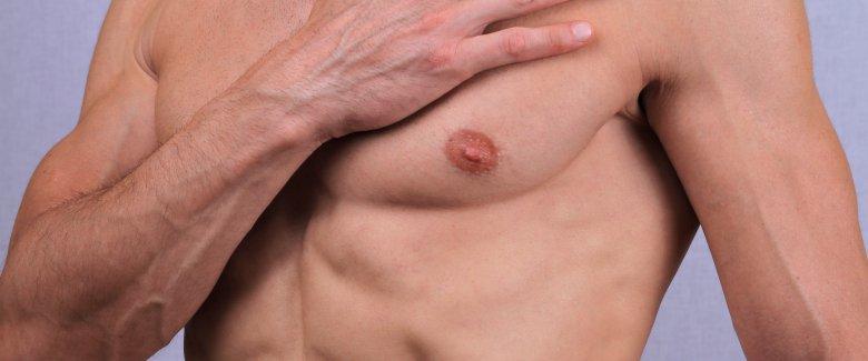 depilazione maschile padova