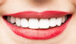 Pulizia denti a 35 euro