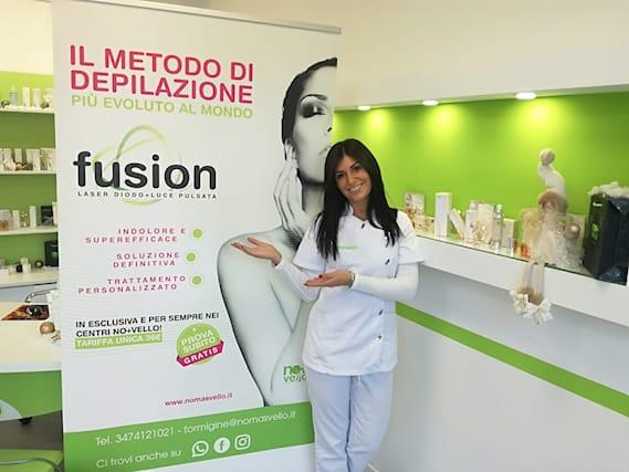 Prova-epilazione-fusion_143791