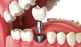 Sconto impianto dentale