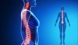 Analisi postura + trattam