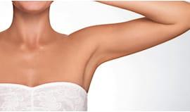 Ceretta braccia donna