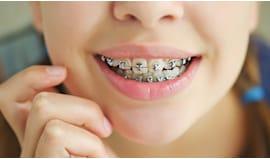 Sconto sull'ortodonzia