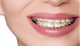 40% apparecchio dentale